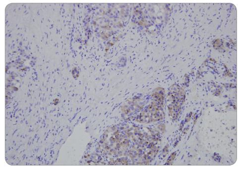 Neuroendokrinní nádor pankreatu – FNAB (chromogranin).