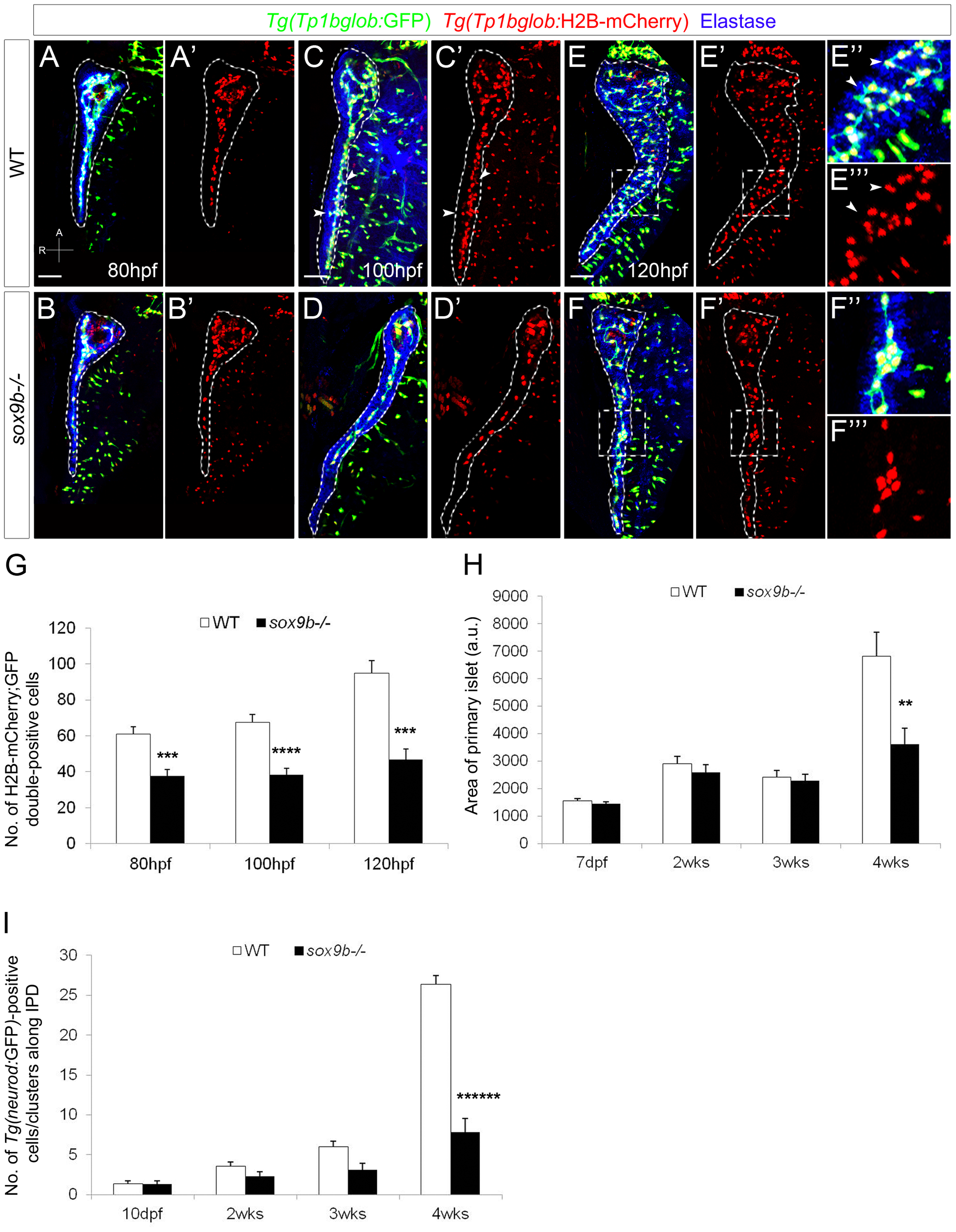 <i>sox9b</i> mutant larvae fail to form a complex intrapancreatic ductal network.