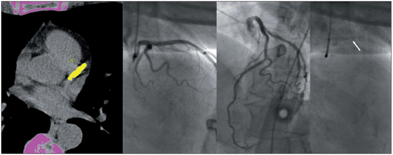 Obr. 2 A, B, C. A: KaS v oblasti r. interventricularis anterior B: Kontrastní zobrazení (prostřední 2 obrázky v různých projekcích) C: Skiagrafie stejné oblasti (šipka označuje uložená vápenná depozita)