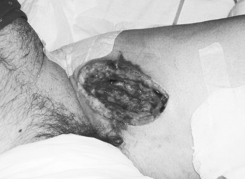 Stav po excízii pseudoaneuryzmy a nekrektómii Pic. 3. Status following excission of the pseudoaneurysm and necrectomy