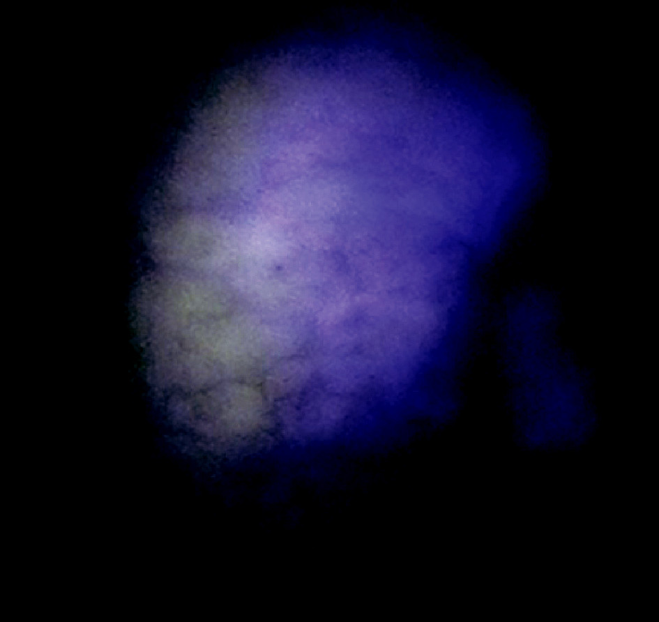 Okraje nádorovej infiltrácie v autofluorescenčnom obraze