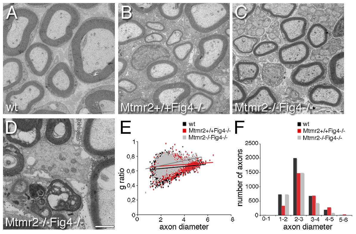 Hypomyelination in <i>Mtmr2</i>+/+<i>Fig4</i>−/− and <i>Mtmr2</i>−/−<i>Fig4</i>−/− sciatic nerves.