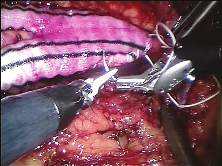 Centrální anastomóza aortobifemorální rekonstrukce (end to side) Fig. 3: The central end-to-side anastomosis of an aortobifemoral bypass