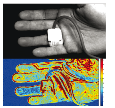 Fig. 8: Application of pressure cuff on the ring finger of the right hand: Reference image from the PPGI sequence (top), functional image of detected heartbeatrelated perfusion intensity.