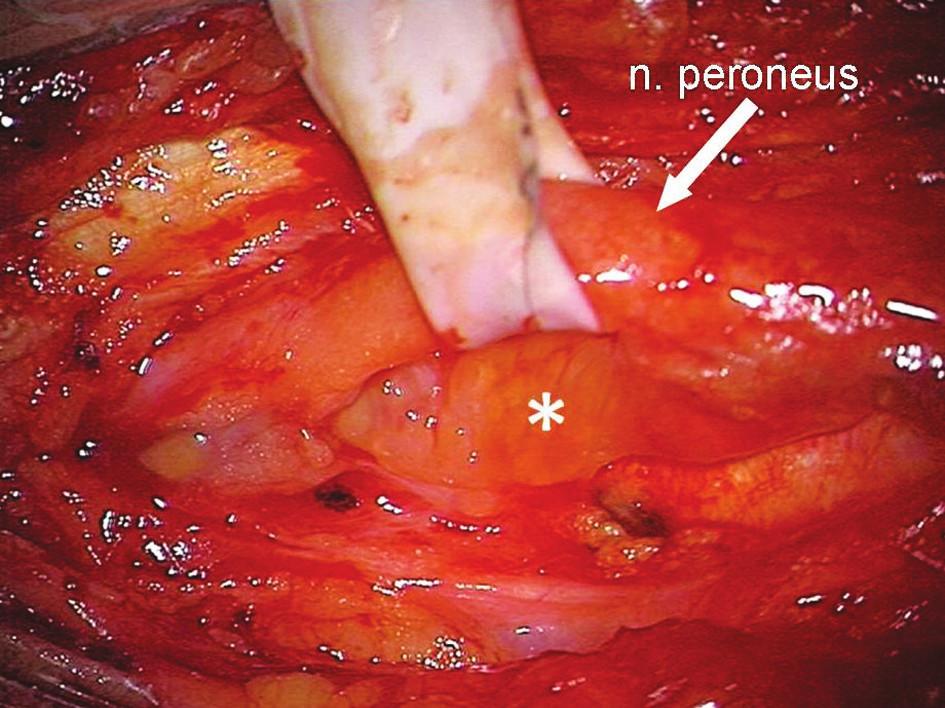 Peroperační nález v podkolení jamce při útlaku n. peroneus communis Bakerovou cystou (*) Fig. 3. Intraoperative findings within the popliteal fossa upon the peroneal nerve compression by the Baker's cyst (*)