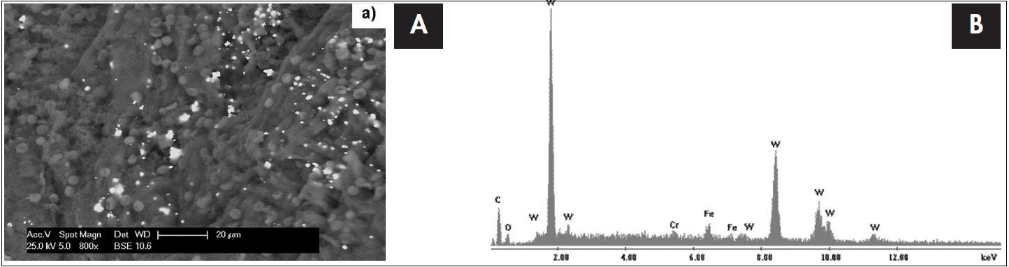 Snímek tkáně tonzily 4 letého dítěte s chronickou tonzilitidou ze skenovacího elektronového mikroskopu s EDS detektorem s odpovídajícím EDS spektrem, který je výsledkem bodové analýzy. Píky označené písmenem W dokazují přítomnost wolframu v tonsilární tkáni.