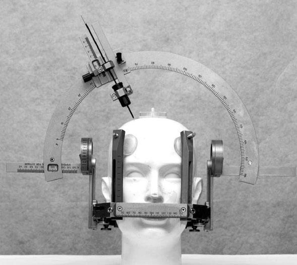 Leksellův stereotaktický rám a oblouk