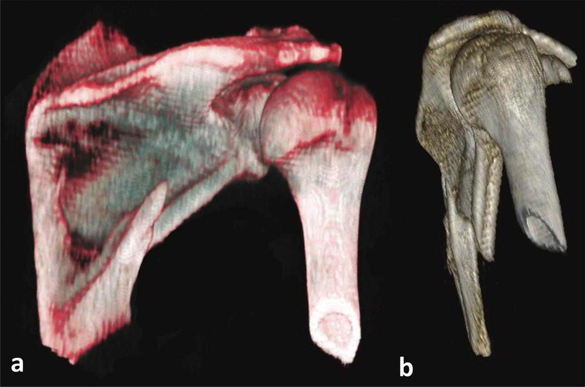 Zlomenina dolní poloviny infraspinátní části těla lopatky a – zadní pohled, b – laterální pohled. Fig. 6: Fracture of inferior half of the infraspinous part of scapular body a – posterior view, b – lateral view.
