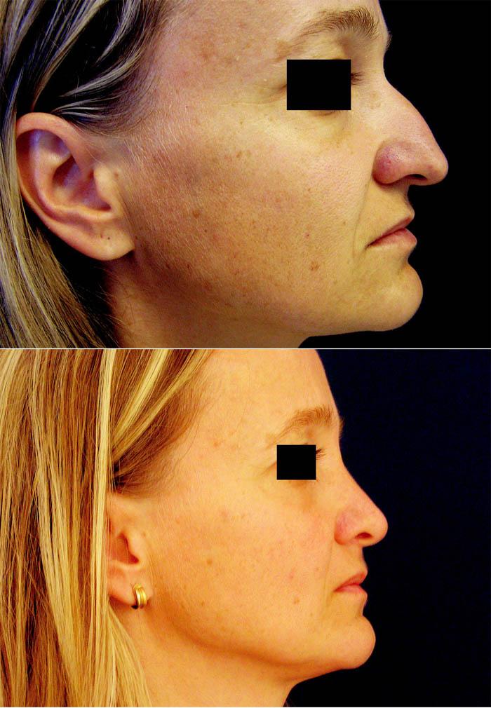 Redukce tkání u profiloplastik. a) snížení septa o 4 mm; b) středně mohutné snesení hřbetu; c) jemné snížení kořene; d) větší redukce alárních chrupavek; e) septum nezkráceno