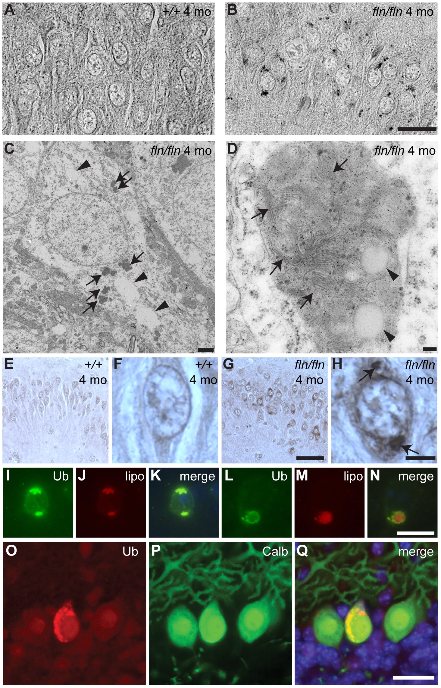 Lipofuscin and ubquitylated protein accumulation in CerS1-deficient neurons.