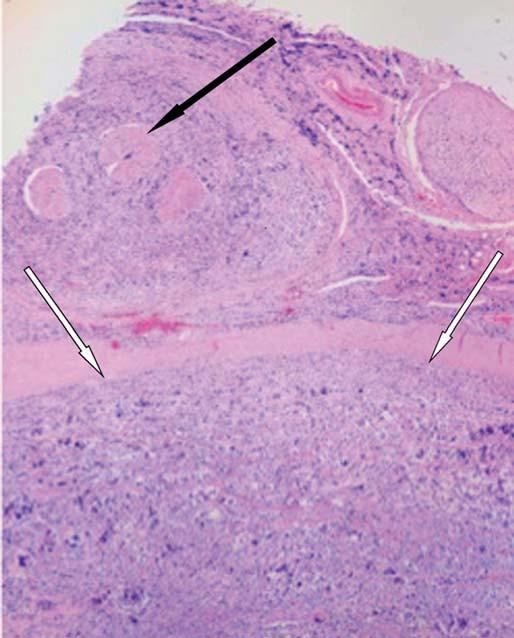 Histologický řez míchou.