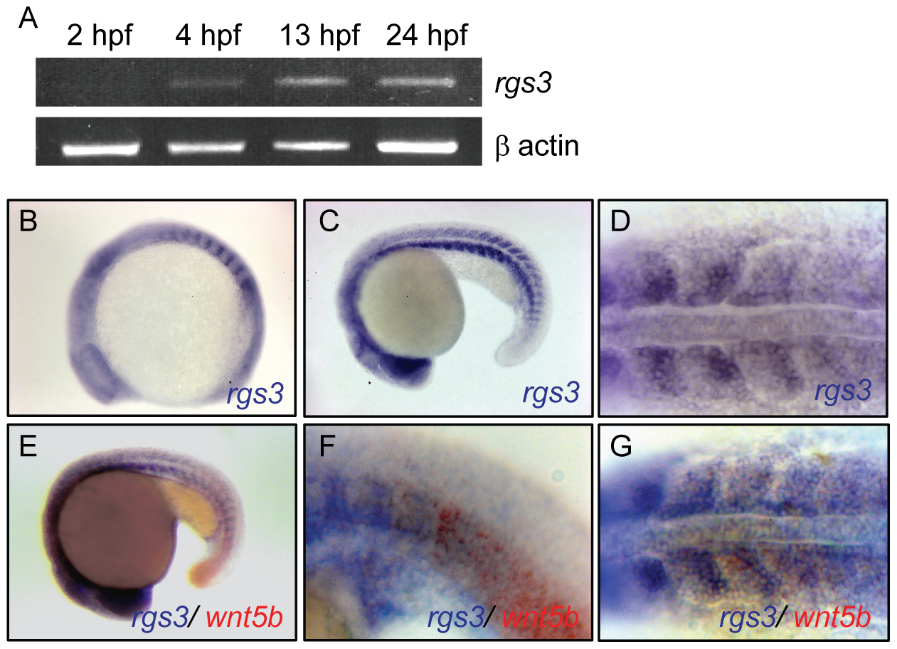 Temporal and spatial expression of <i>rgs3</i> throughout zebrafish development.