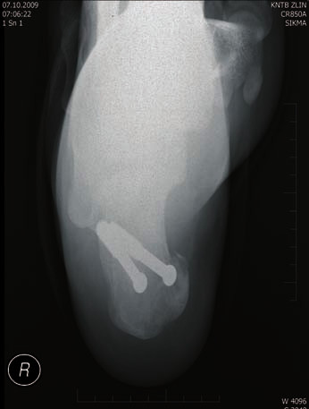 Osteosyntéza AO šrouby - axiální projekce