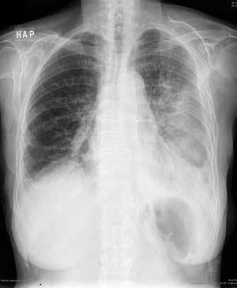 RTG hrudníku: kryptogenní organizující se pneumonie