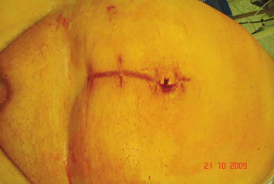 Jizva po první operaci Fig. 5. A scar following the first procedure