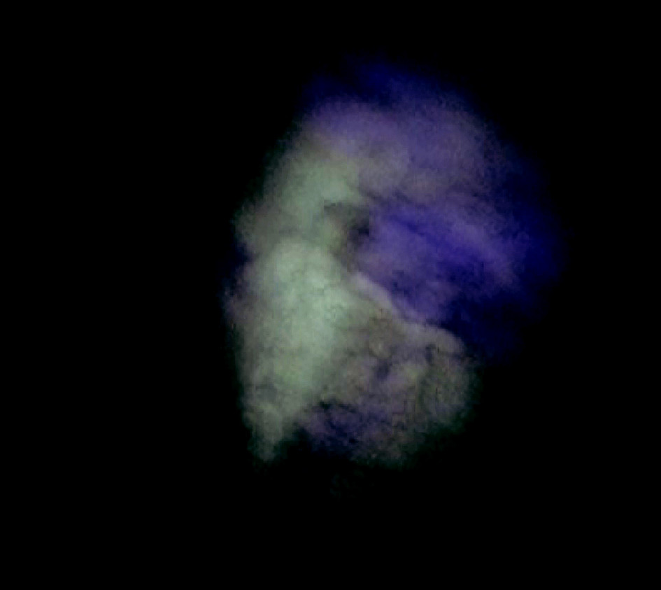 Pohľad na parietálnu pleuru bez postihnutia v autofluorescenčnom obraze