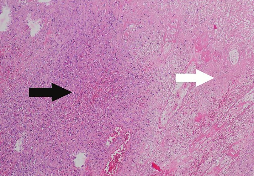Přehledný histologický preparát, na kterém jsou zastiženy měkké tkáně prostoupené difuzně rostoucí populaci středně velkých lymfoidních elementů, často s angulovaným či konvolutovaným jádrem a světlou cytoplazmou (černá šipka), dále jsou patrné nekrotické oblasti v nádorové mase (bílá šipka) (barveni Hematoxylin&Eosin, zvětšení 100krát).