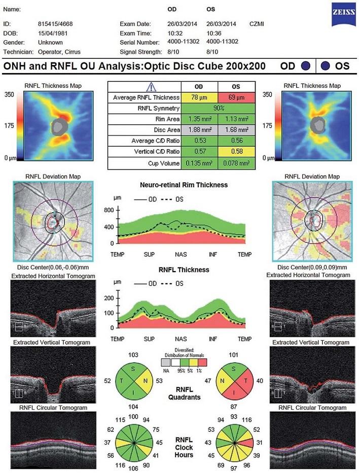 Vyšetření vrstvy nervových vláken (Retinal Nerve Fibre Layer; RNFL) a terče zrakového nervu (optic nerve head) – patologický nález (Cirrus OCT HD), na levém oku stav po optické neuritidě.