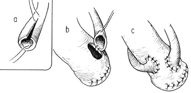 Ureteroileostomie podle Brickera – end to side uretero-ileo anastomoza 