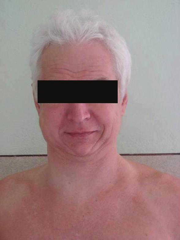 Pacient s podkožním emfyzémem hrudníku a krku Fig. 1. The patient with subcutaneous emphysema of the neck a thorax