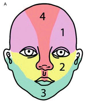 Části obličeje při postižení segmentálním IH. 1 – frontotemporální, 2 – maxilární,  3 – mandibulární, 4 – frontonazální Fig. 1. Areas of face involvement by segmental hemangioma. 1 – frontotemporal, 2 – maxillar,  3 – mandibullar, 4 – frontonasal