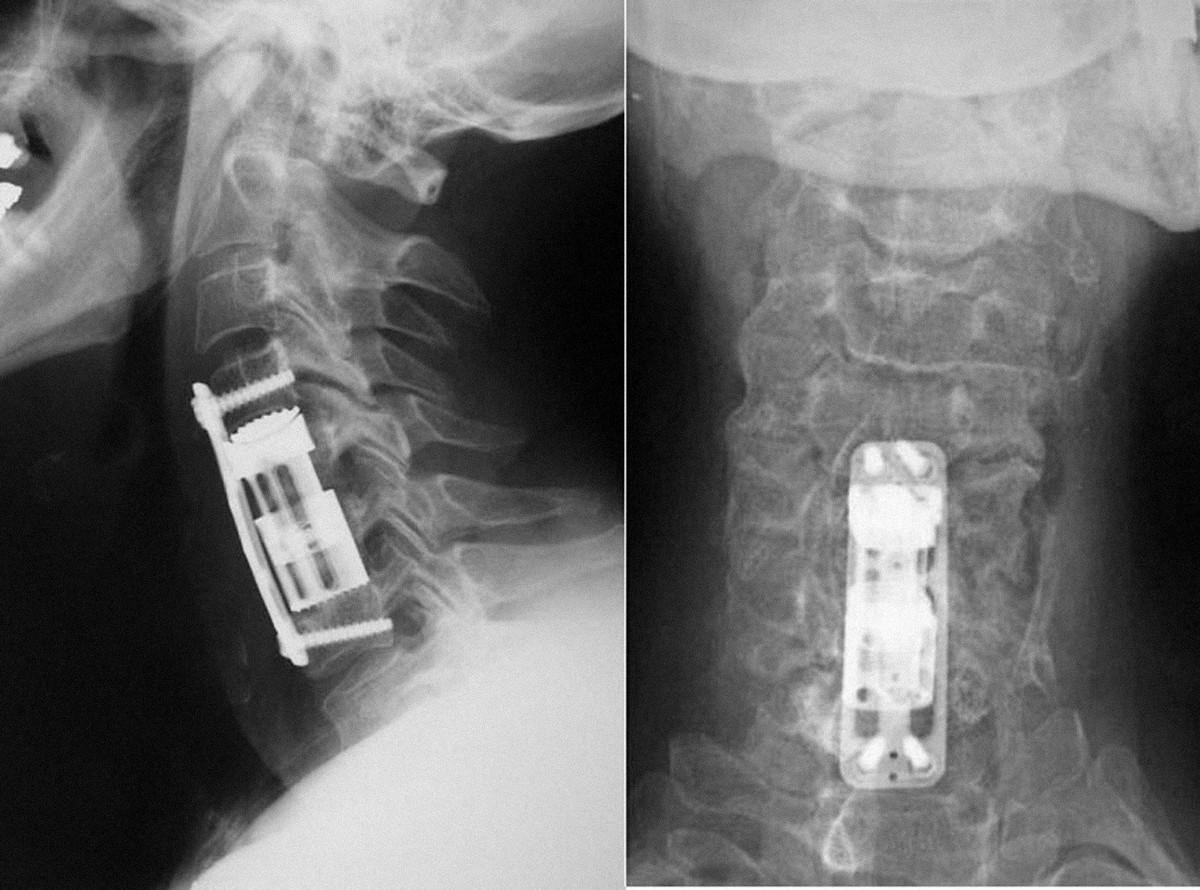 Teleskopický distrakční koš Te-Corp<sup>®</sup> užitý u pacienta k rekonstrukci defektu po odstranění obratlových těl C5 a C6. Konstrukce implantátu pro krční páteř umožňuje ve třech provedeních náhradu defektu předního sloupce v rozsahu 20–61 mm. Kraniální komponenta obsahuje úhlově nastavitelnou lištu konvexního profilu, která je konstrukčně přizpůsobena k tomu, aby dokonale dosedla na kontaktní plochu kraniálního obratle.