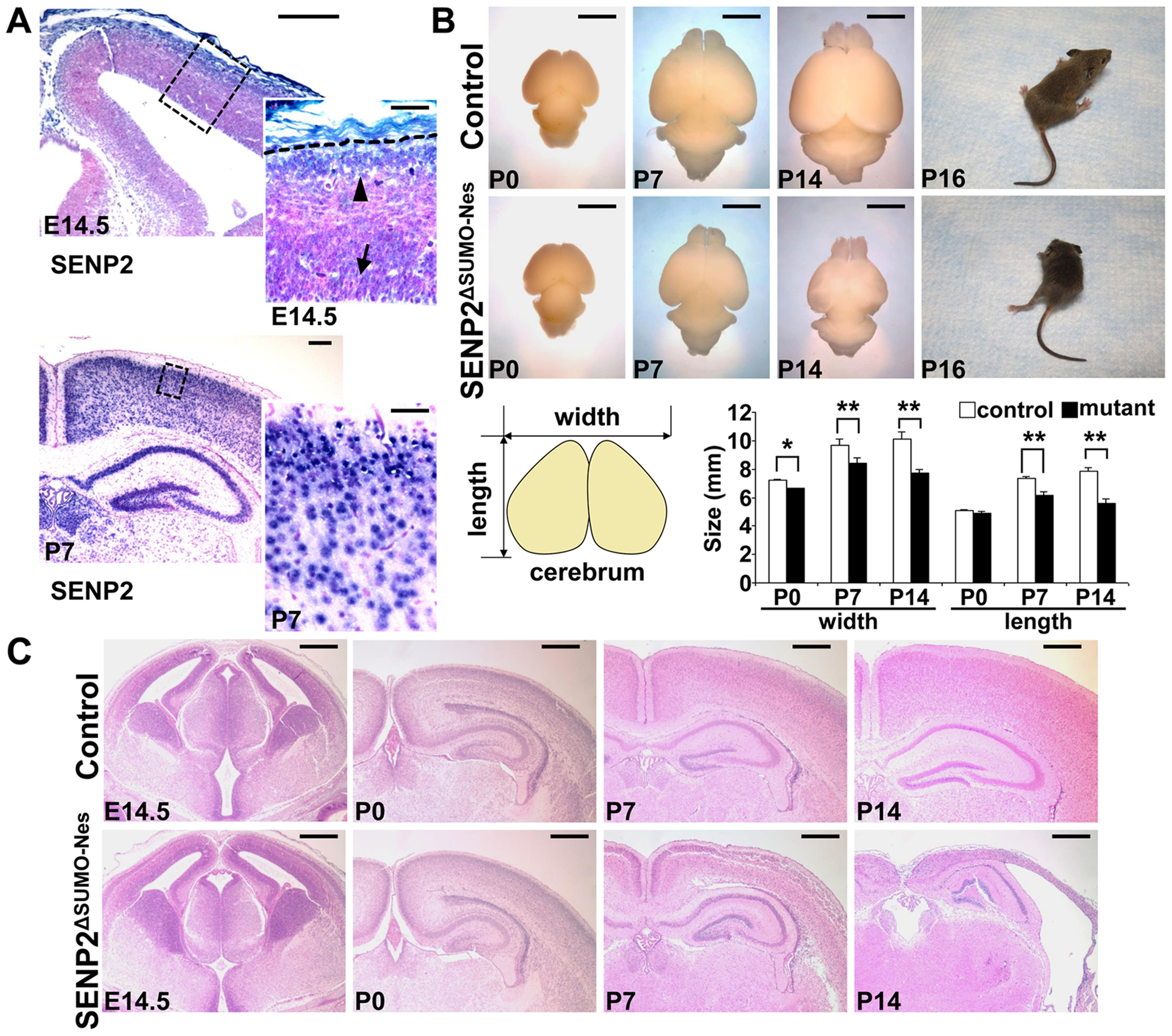 Disruption of SENP2 in the neural progenitors causes neurodegeneration.