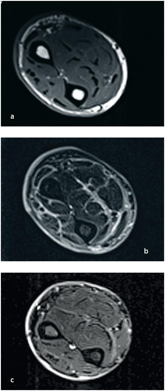 MR svalů předloktí při stanovení diagnózy (a, b) a po 3 měsících terapie (c). V T1 váženém nativním obraze je zvýrazněn pouze signál kožní vrstvy, která je současně i rozšířená, svaly mají normální strukturu (a). V T2 obraze postkontrastně je v téže oblasti patrné zvýraznění fascií, intramuskulárních sept a kůže (b). Na třetím snímku (c) z kontrolního vyšetření po terapii (T2 obraz, postkontrastně) je patrná kompletní regrese zánětlivých změn.