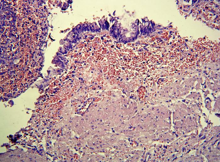 Histologický nález stěny cystické duplikatury rekta. Zachycen je jednovrstevný cylindrický epitel a pod ním lamina muscularis mucosae