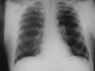RTG srdce a plic po terapii.
