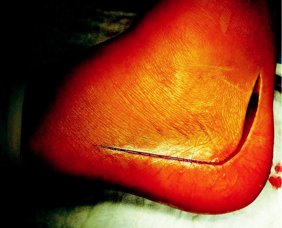 Obr. 1a. Extenzivní laterální řez Fig. 1a. Extensive lateral incision