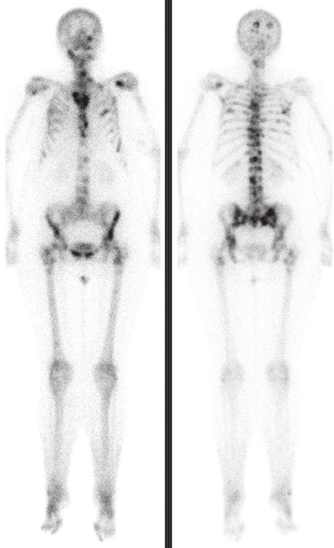 Vstupní kostní scintigrafie prokázala dvě ložiska patologicky zvýšené kostní přestavby v lebce a v 5. žebru vpravo.