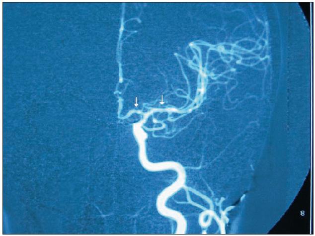 DSA obraz vícečetných segmentálních stenóz (vazospazmů) na pravé středních mozkové tepně u pacientky s RCVS.