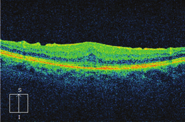 Nález makuly na OCT 3 měsíce po operaci: ústup edému, úprava linearity retinálních vrstev