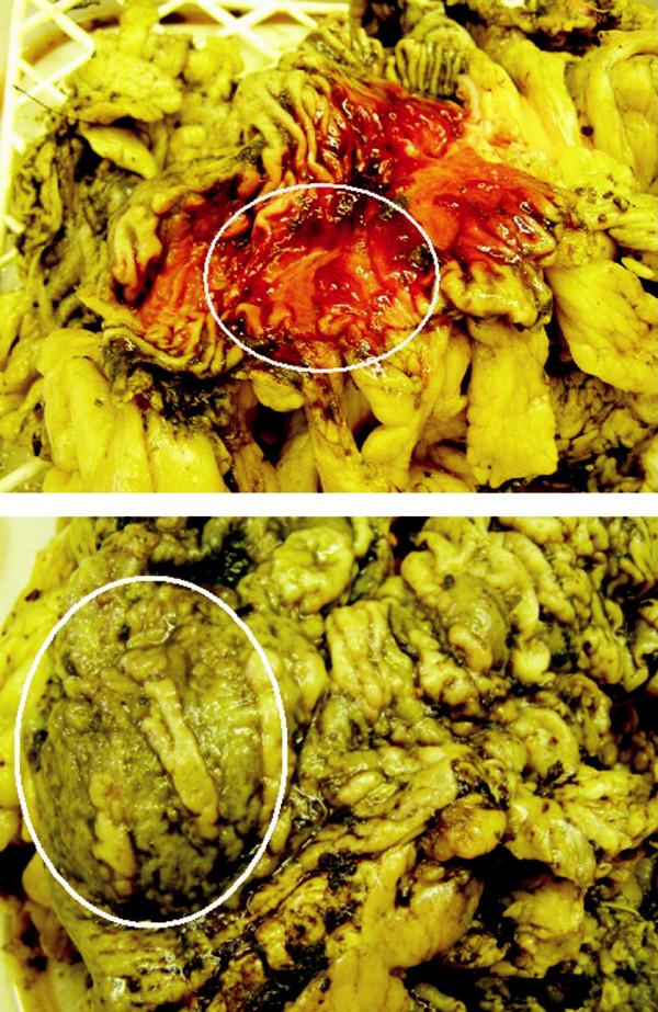 Myotické ložisko v resekátu střeva Fig. 5. Myotic focus in the colon resecate