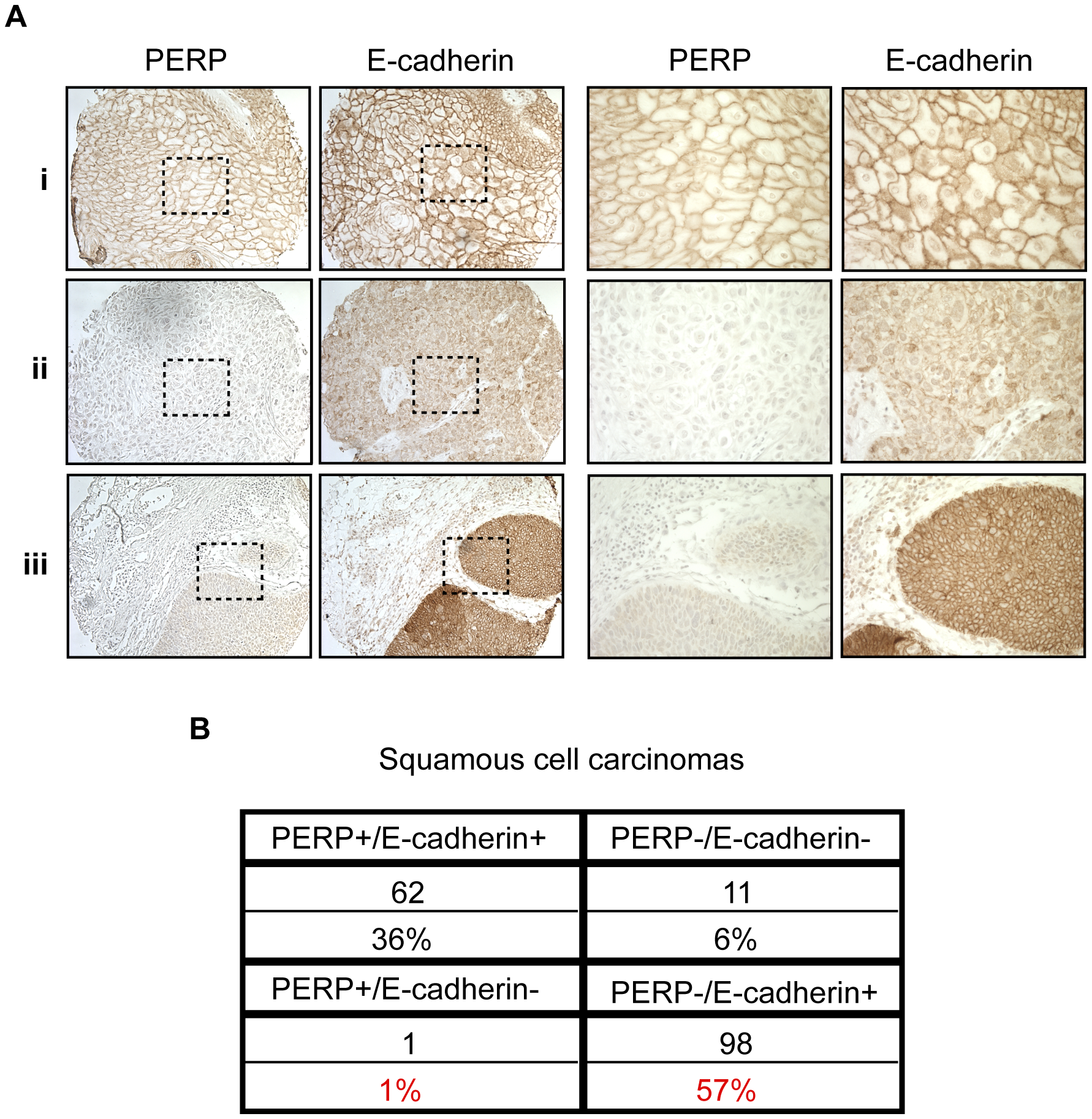 PERP loss with E-cadherin maintenance is a common event in human skin SCCs.