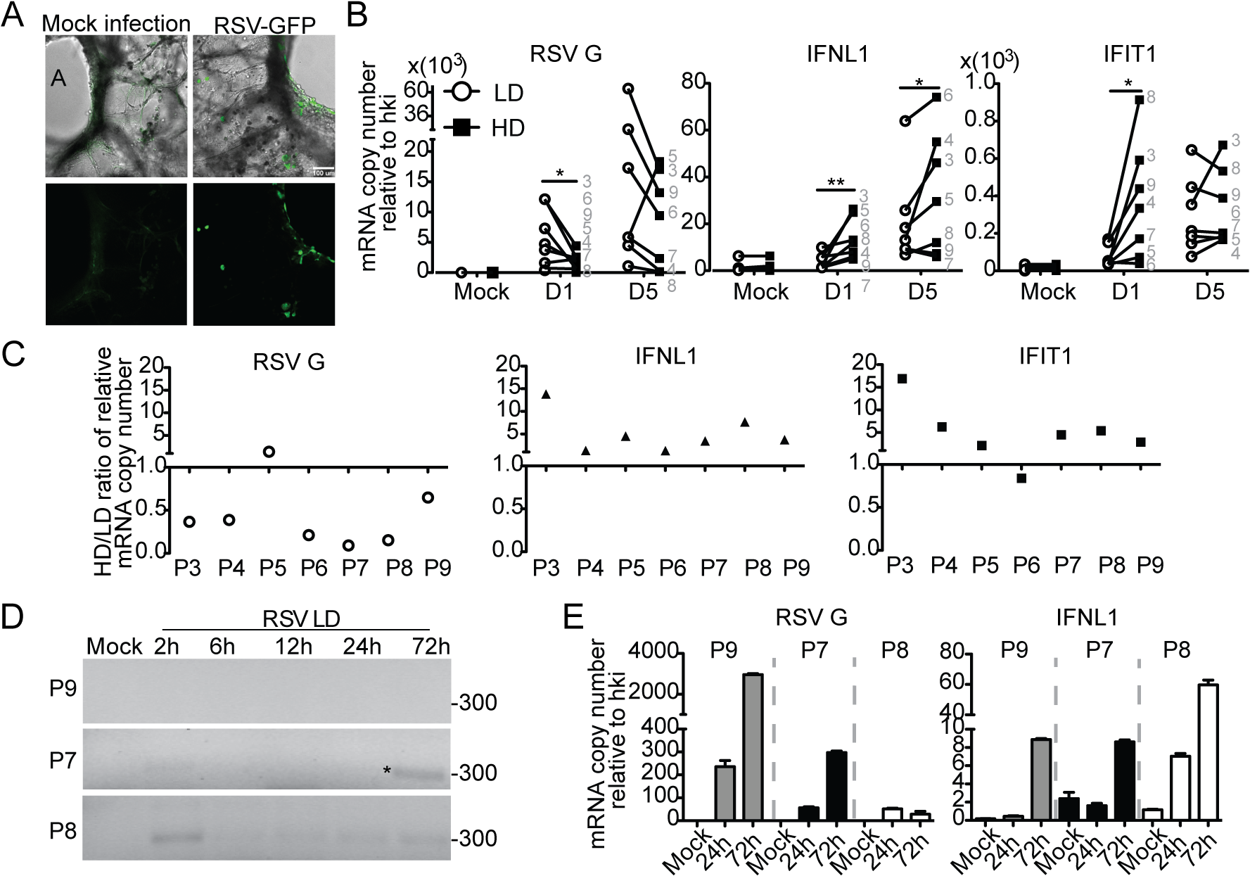 Host-intrinsic factors determine the response to iDVGs in the human lung.