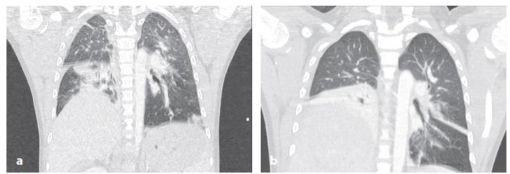 Pozdní diagnóza poranění bránice u 7leté dívky při autonehodě Obr. 4a: Vstupní CT vyšetření s nálezem kontuzních změn na plicích a suspektní elevací pravé poloviny bránice Obr. 4b: CT nález s 10denním odstupem potvrzující rupturu bránice s dislokací jater do hrudníku a atelektázou dolního laloku vpravo. Poranění bránice ošetřeno suturou z laparotomie. Fig. 4: Delayed diagnosis of diaphragmatic rupture in a 7 years old girl after a car accident  Fig. 4a: Initial CT findings with lung contusion and suspected elevation of the right hemidiaphragm Fig. 4b: CT findings after weaning from ventilatory support confirmed diaphragmatic rupture with herniation of the liver and atelectasis of the lower lung lobe on the right side. Suture of the diaphragm was performed via laparotomy