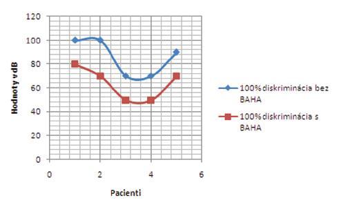 Výsledky slovnej audiometrie v skupine získaných prevodových/kombinovaných porúch sluchu bez a s BAHA testerom – 100% diskriminácia.
