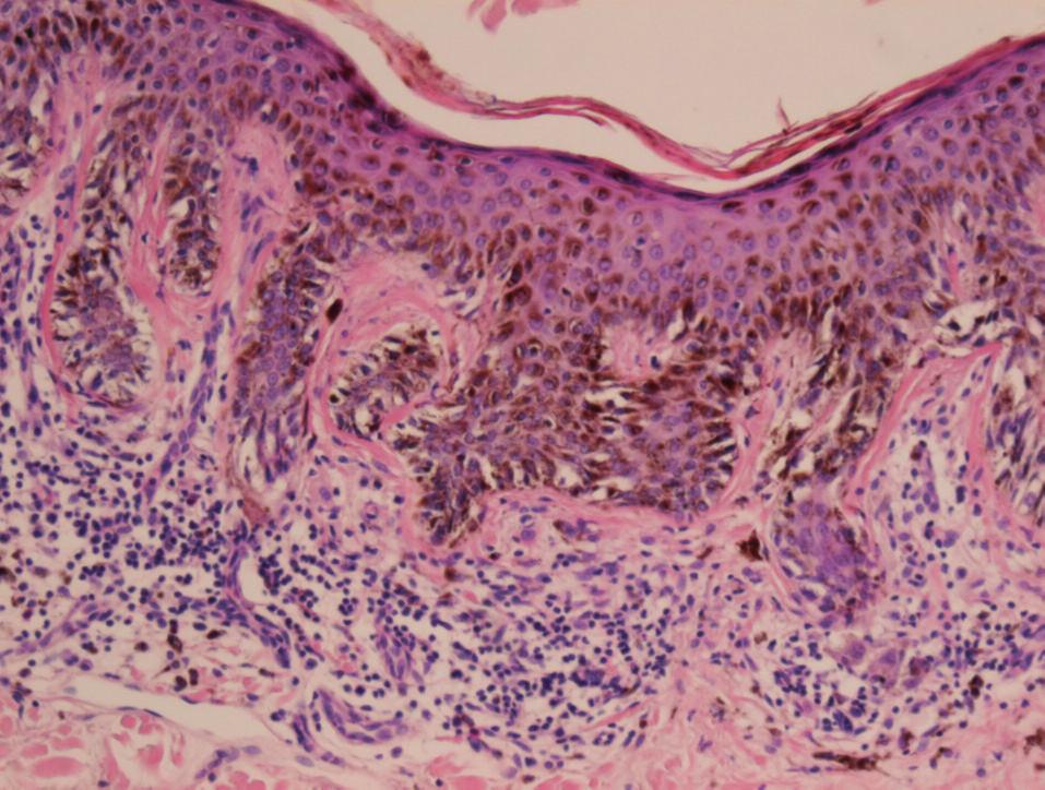 Architektonická dysplázia v dysplastickom néve. Lamelárna fibróza okolo predľžených a čiastočne fúzovaných epidermálnych čapov, lymfocytová reakcia a proliferácia kapilár v hornej derme (HE, 100x).