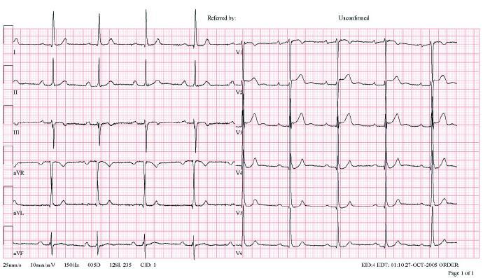 Elektrokardiogram 48letého muže, aktivního sportovce – cyklisty. V EKG patrna sinusová bradykardie, AV-blok I. stupně s intervalem PQ 0,25, voltážová kriteria hypertrofie levé komory srdeční, nespecifické repolarizační změny.