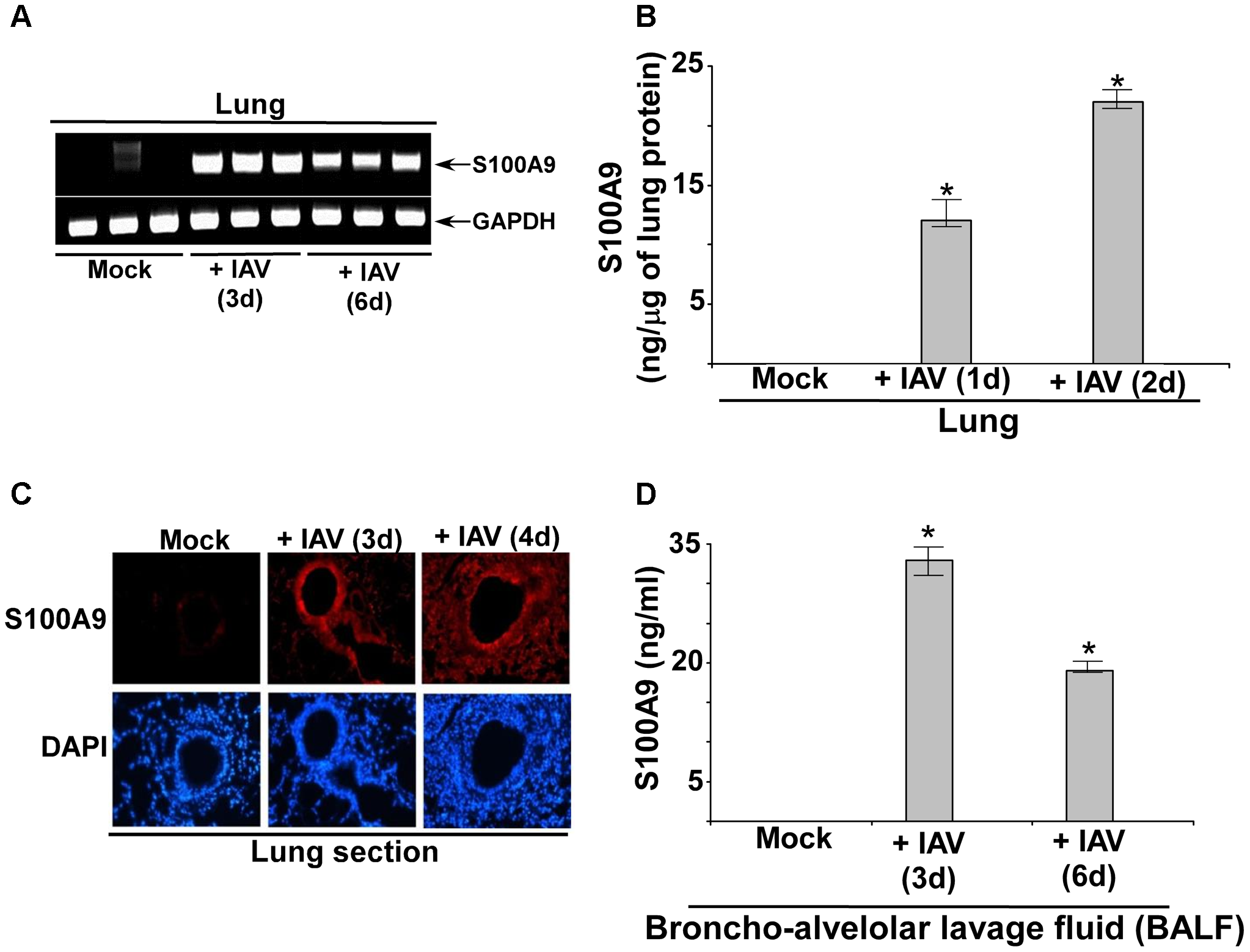 S100A9 expression and production in the IAV infected respiratory tract.