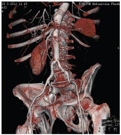 Stav po AA rekonstrukci (CT AG 3 měsíce po operaci) Fig. 4: CT AG 3 months after AA reconstruction