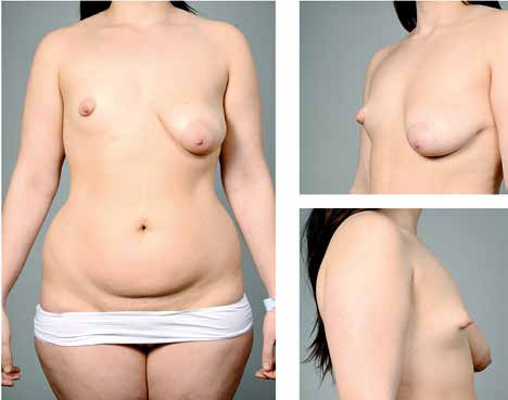 Fig. 6. A 19-year-old patient with bilateral tuberous breast deformity