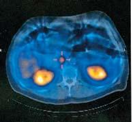 SPECT patologické ložisko v oblasti hlavy pankreatu.