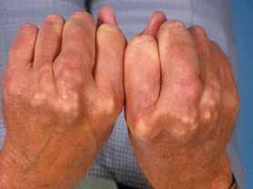 Šlachové xantomy u FH (foto archiv autora)