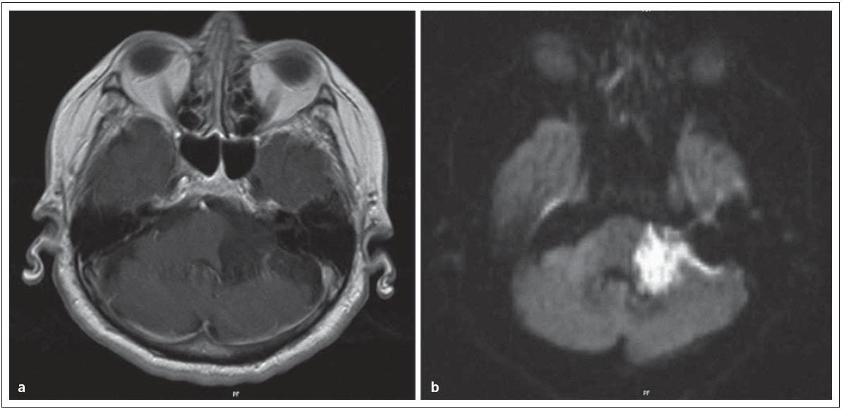 Obr. 3a) Epidermoid v mostomozečkovém koutu vlevo v T1WI. Obr. 3b) Typická restrikce difuze a hyperintenzní signál ve srovnání k moku v DWI.