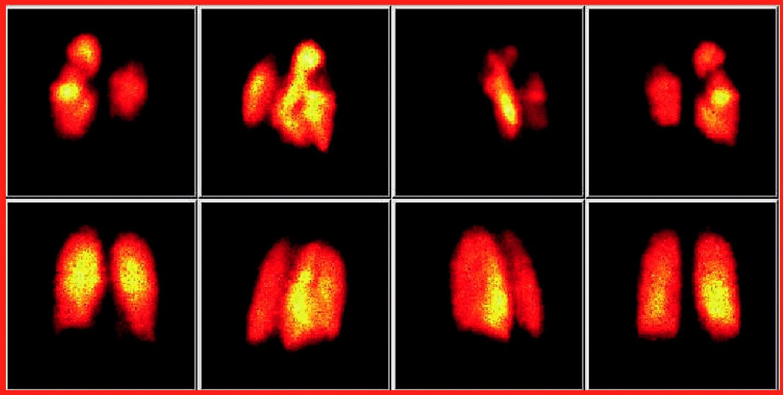 Perfuzní scintigrafie plic. Na obrazech v horní řadě jsou patrné známky oboustranné plicní embolizace s typickými klínovitými defekty. Kontrolní vyšetření po 3týdenní léčbě je na scintigramech v dolní řadě s normalizací nálezu.
