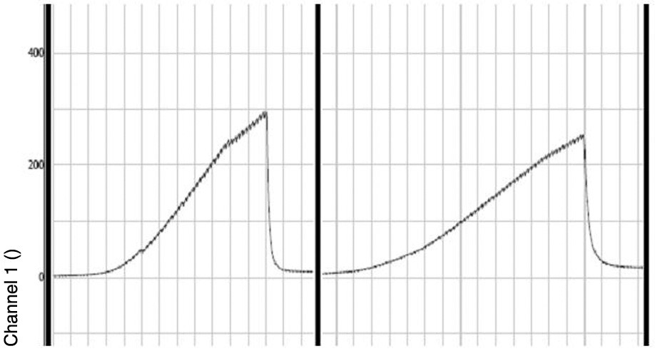 Záznam intraluminálního střevního tlaku v programu Chart 5 při měření pevnosti anastomózy. Prudký pokles tlaku odpovídá okamžiku porušení integrity střevní stěny. První křivka je kontrolním záznamem z oblasti proximálního neoperovaného střeva, druhá křivka je záznamem z oblasti anastomózy. Fig. 3. The recorded of bursting pressure in the Chart 5 programme in the anastomosis resistance assessment anastomosis strenght. The rapid pressure drop corresponds with a moment when the intestinal wall integrity was flawed. The first curve is a control record from the unoperated proximal intestine, the second curve recorded the anastomotic region.