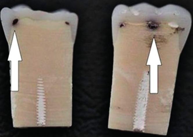 Dvouvrstvé zuby s kazivou lézí Nissin